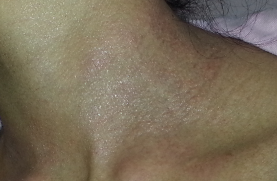 Black People Eczema On Neck Pictures to Pin on Pinterest ...