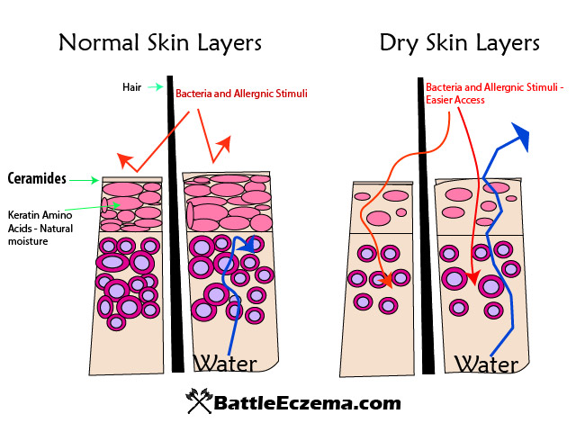 Ceramides and dry skin layers Diagram