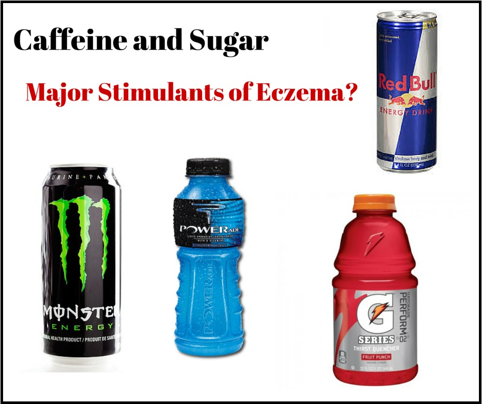 Avoid Energy And Sport Drinks If You Have Eczema Battle