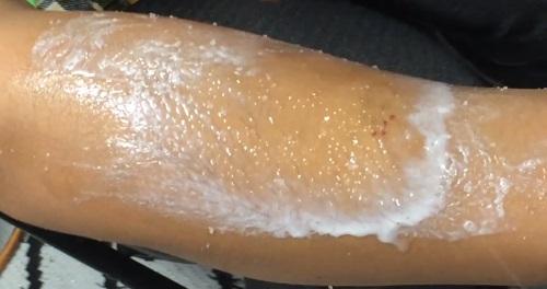 Body Scrub leaves milky residue: Yaffa Skin Care for Eczema
